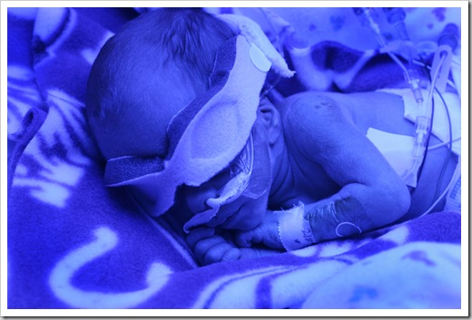 Henry Samuel Murray (cq), bathed in blue ultraviolet light in the NICU at St. Vincent Women's Hospital, Friday, February 9, 2007,  was the first in a set of quadruplets born to Jen and Brad Murray last Friday, February 2, 2007.  He was 2 lbs 11 ozs at birth.    The four brothers are all in the NICU.  (Kelly Wilkinson / The Indianapolis Star)