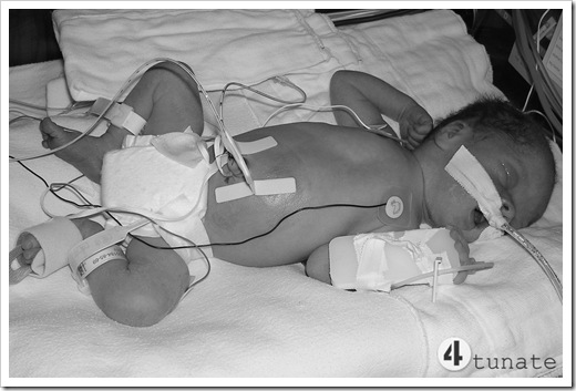 quadruplets birth picture - isaac